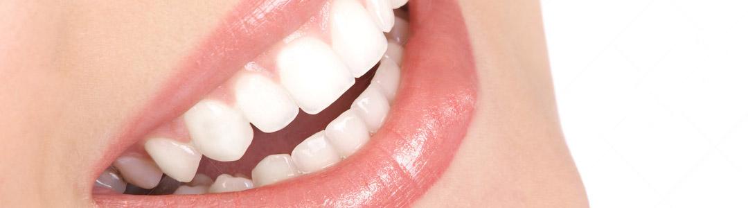 Protesi-Estetica_Dental-Studio_Rizza_Modica